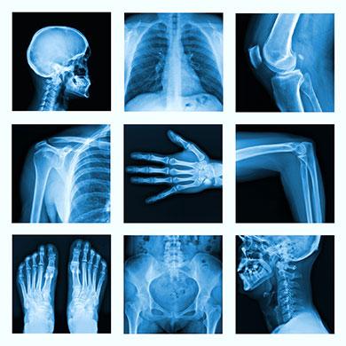 x-rays.jpg